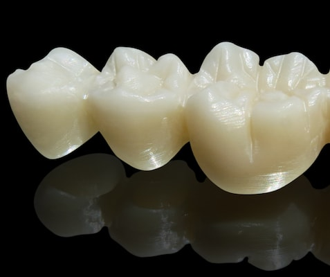 Three artificial teeth made of Zirconia on a black background with a slight reflection