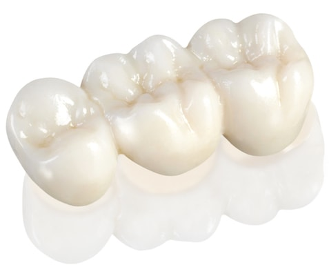 Row of three zirconia teeth created by our dental lab team