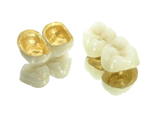 Two sets of artificial teeth with gold inside