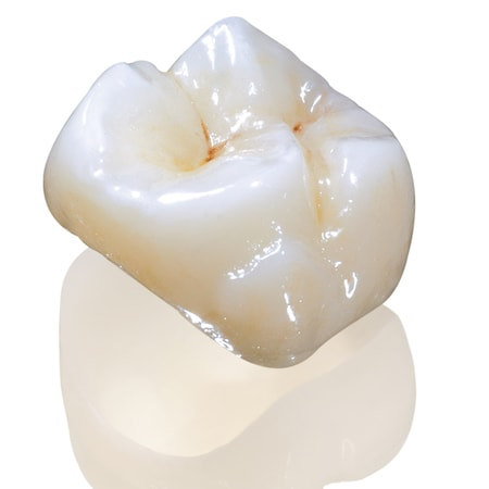 Close-up of a composite crown designed to match your teeth
