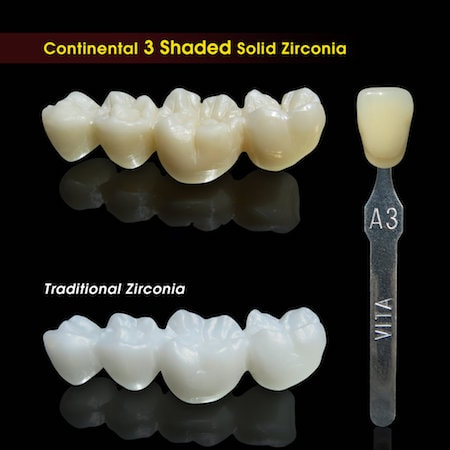 Comparing Luxer bridges (on top) to traditional zirconia bridges (below) and the instrument used to measure the tooth shade