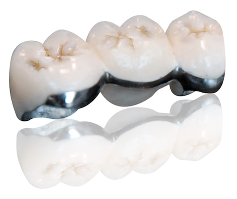 Three teeth in a row as part of a semi precious restoration with light reflection