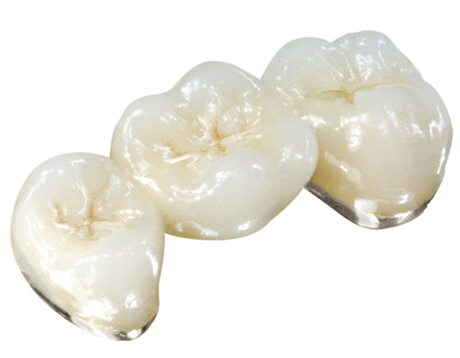 Three teeth connected and created using a white noble material